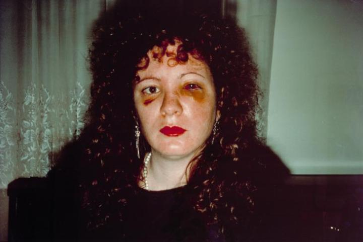 Nan one month after being battered 1984 by Nan Goldin born 1953